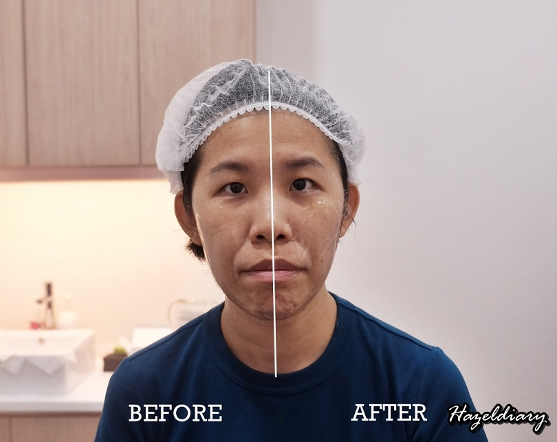 SG BEAUTY] My First Attempt On Facelift High Intensity