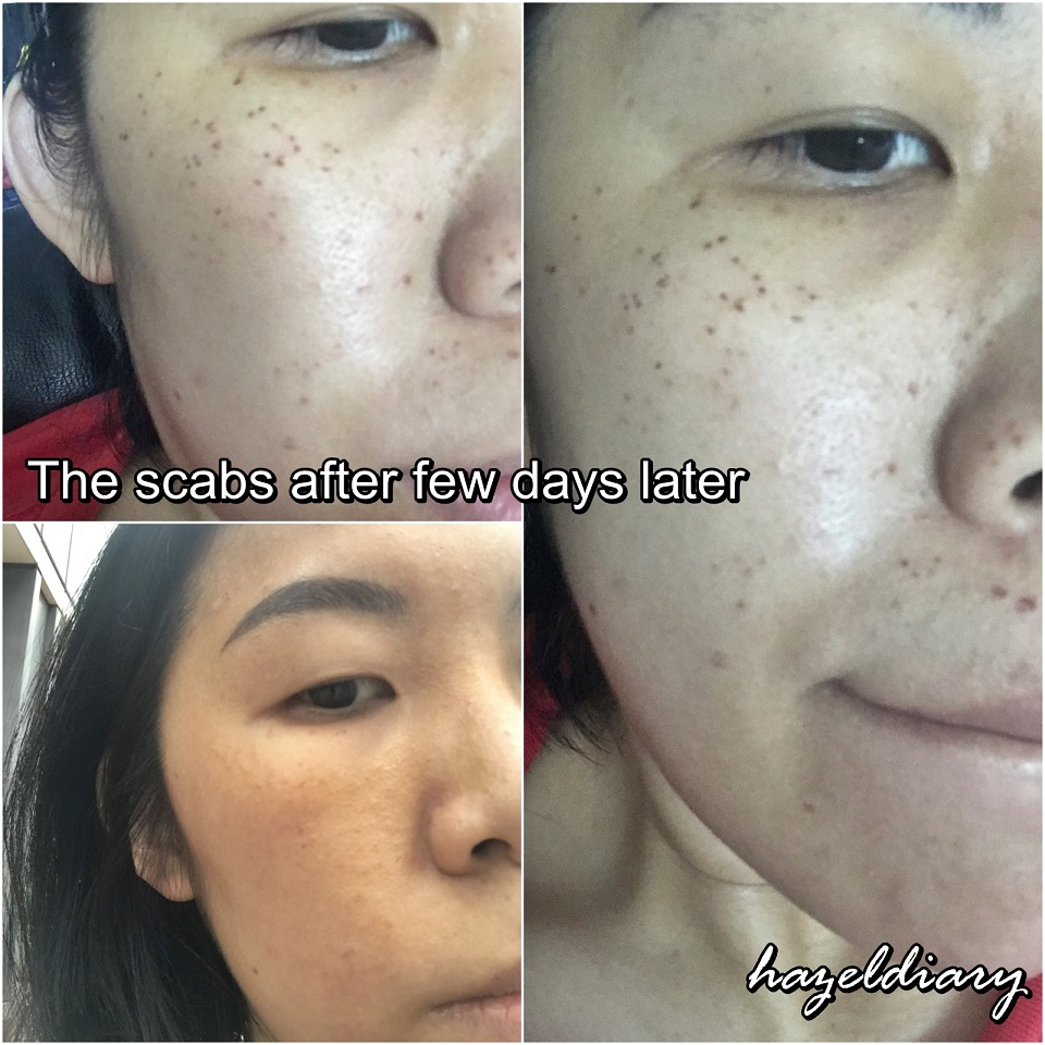 Beauty Review My Pico Laser Experience Journey To Getting Rid Of Pigmentation Hazeldiary